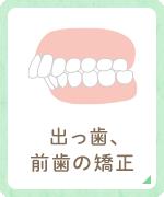 出っ歯、 前歯の矯正