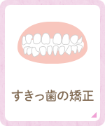すきっ歯の矯正