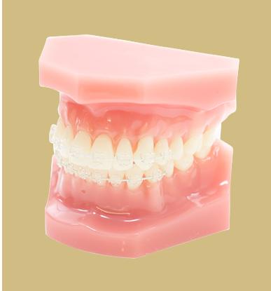 目立たない矯正歯科装置